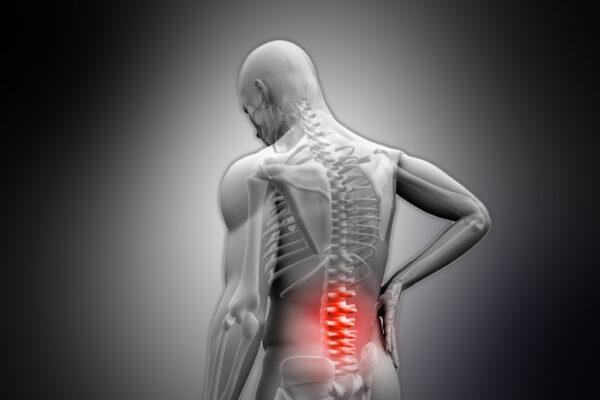 rugpijn Chiropractie Harderwijk